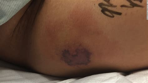 tattoo infection after 2 days man dies after swimming with new tattoo cnn
