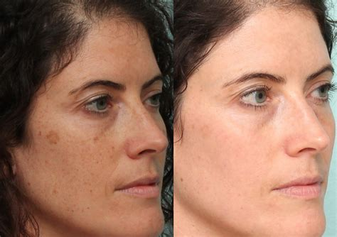 100 post my 3rd treatment of laser treatment laser skin clinic ipl spots before after