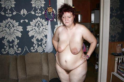 Ugly Hairy Slags Pics XHamster