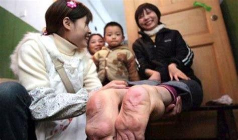 how to tie a girl to your bed أخبار 24 بالصور فتاة صينية ولدت بقدمين مقلوبتين