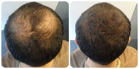 hair transplant innovations hair transplant innovations newhairstylesformen2014 com