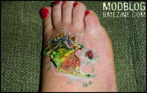tattoo peeling ink risks bme piercing and modification news