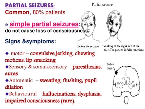 focal motor seizure symptoms epilepsy