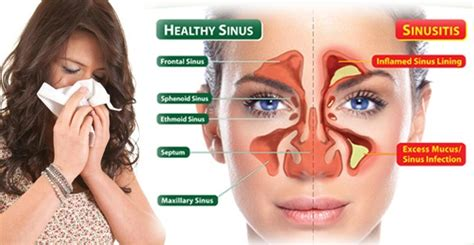 Sinus Resdung acute sinusitis