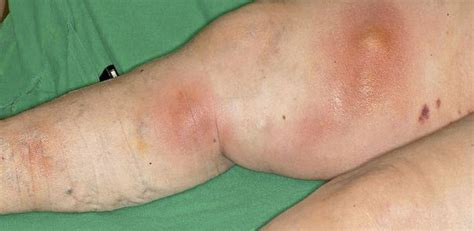 innere thrombose thrombophlebitis und innere symptome