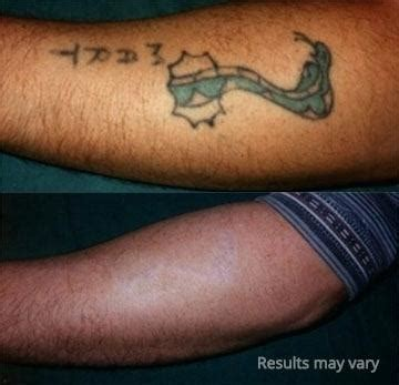 average cost of tattoo removal cost for removal cost of laser removal uk