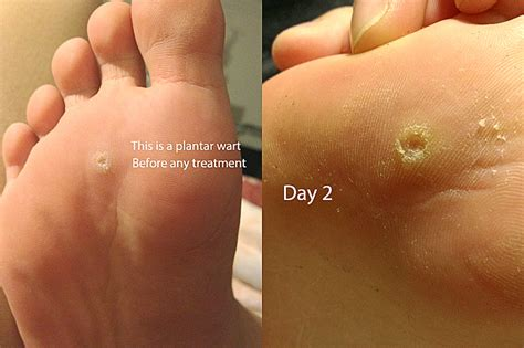 How To Remove Planters Wart by Plantar Wart Removal Chaddycake