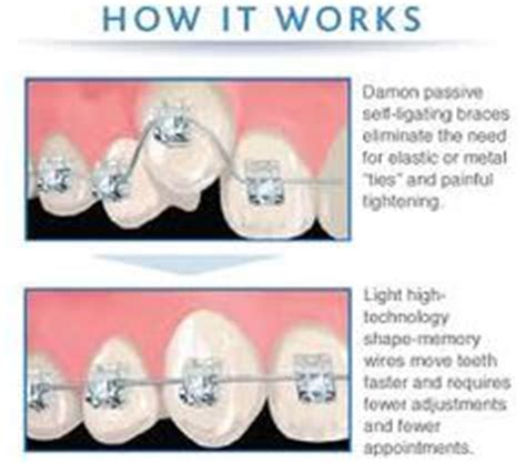how do teething work 1000 images about questions about orthodontics on