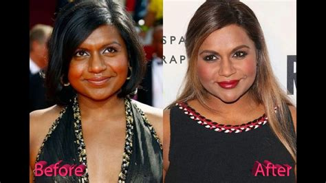 mindy kaling now mindy kaling before and after plastic surgery youtube
