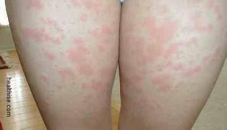 creatine rash skin rash and treatment healthise