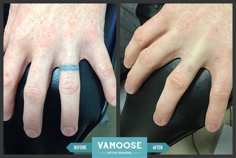 tattoo removal on finger removal before and after pictures vamoose chicago