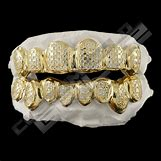Gold Teeth Grillz | 760 x 760 jpeg 59kB