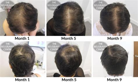 female pattern hair loss dutasteride hair growth success good result so far after 1 year