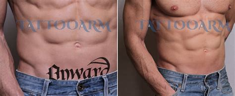 laser tattoo removal at home how to remove a at home without hurting you