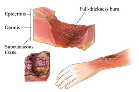 burn victim meaning third degree burn definition and what are the indicators