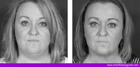 liposuzione interno cosce liposuzione foto risultati prima dopo chirurgia plastica