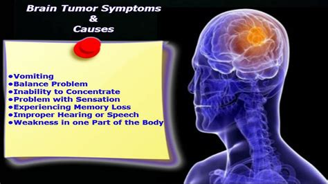 tumor symptoms top 7 myths about brain tumors continental hospitals
