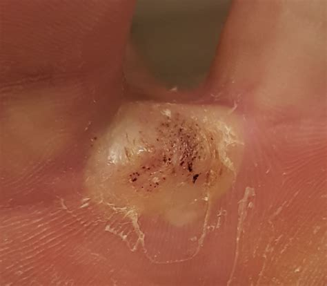 my plantar wart treatment experience my plantar wart