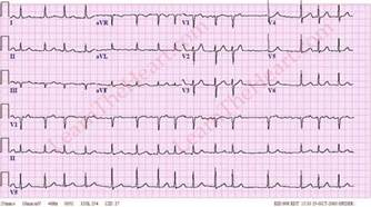 how to get out of afib at home atrial fibrillation 1 learntheheart