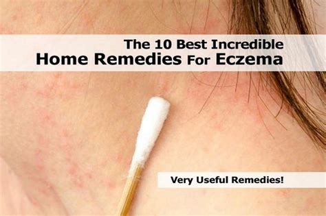 the 10 best home remedies for eczema
