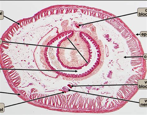 cross section of earthworm biology 112 gt johnson gt flashcards gt practical slides