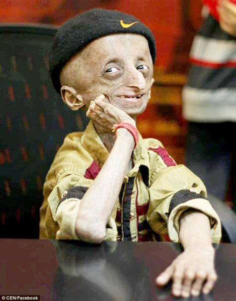 who has died this week may 2016 indian boy who aged 8 times faster than normal dies aged