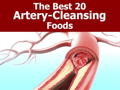 Vein And Artery Detox by 20 Foods That Clean Your Arteries Naturally And Protect