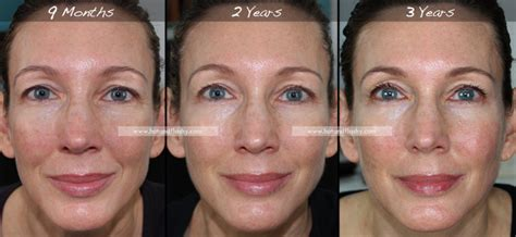 best retin a pics for gt tretinoin before and after wrinkles