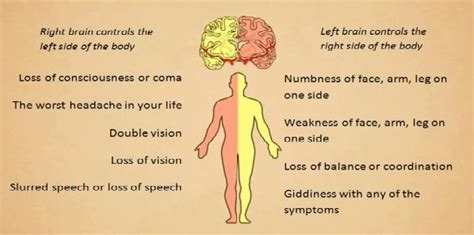 stroke symptoms coping with pre hospital stroke symptoms healthmanagement org