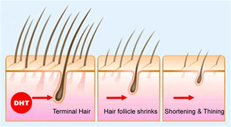 female pattern hair loss dht health of hair and scalp beyond hair basics