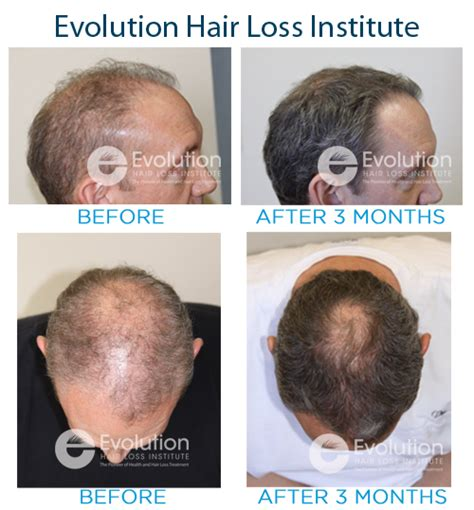 latest news and research on hair loss hair loss treatment news evolution hair loss institute