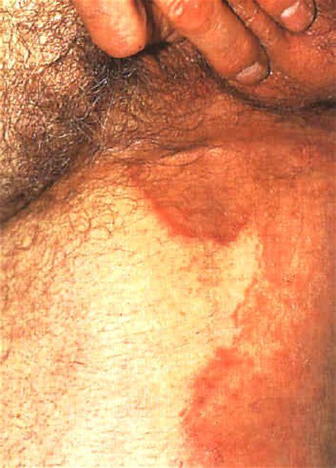 bruciore al sedere rimedi allergie e reazioni cutanee dermatiti orticaria punture