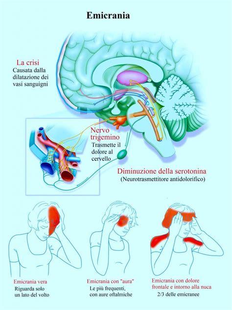 mal di testa con aura rimedi naturali per l emicrania farmaci dieta massaggi