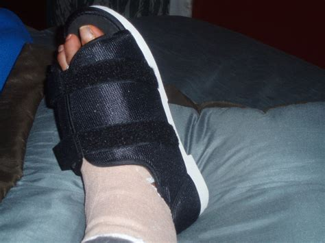 foot bunion surgery hubpages