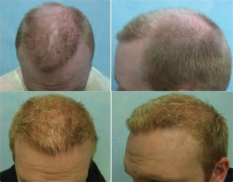 prescreened hair transplant physicians success rate of hair transplant f u e hair transplant