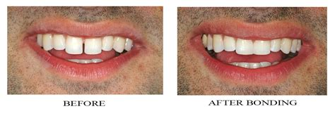Mba After Dentistry by Front Teeth Bonding Before And After Bonding Diastemas