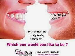 Harga Clear Aligner your family dentist elok ke pakai clearpath aligner