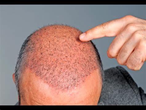 sulfur to grow hair bald spot how to make hair grow in bald spots