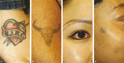 plastic surgery tattoo removal removal of tattoos and permanent makeup plastic surgery key