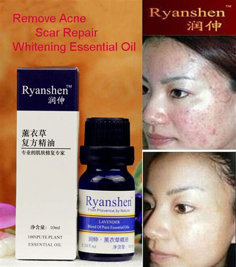 skin care skin treatments vitopini aliexpress buy care ryanshen remove scar repair
