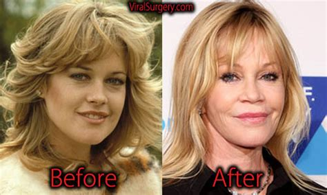 jessica robertson surgery melanie griffith plastic surgery before and after