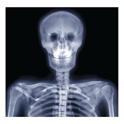 x ray x ray body www pixshark com images galleries with a bite