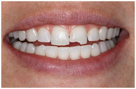 how do you fix a chip in a bathtub chipped tooth no problem keri shenker dentistry