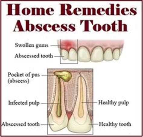 Abscessed Tooth Home Remedy by On Home Remedies Coconut And Teeth