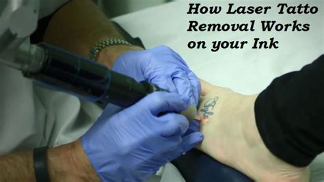 train to remove tattoos can you remove tattoos naturally at home by yourself