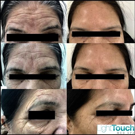 botox 174 lighttouch laser clinic