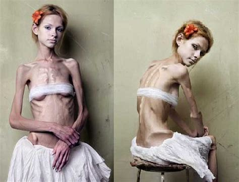 On The Anorexic Model Problem She Says by Jour2 Assignment 2 Media Impact