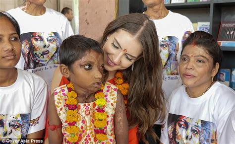 Annas Was Moved by Miss Universe Gb 2017 Meets Acid Attack Victim 7 Daily