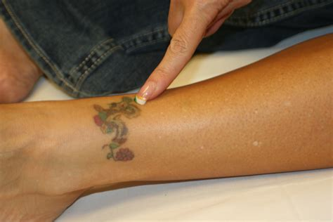 tattoo removal tattoo removal training national laser