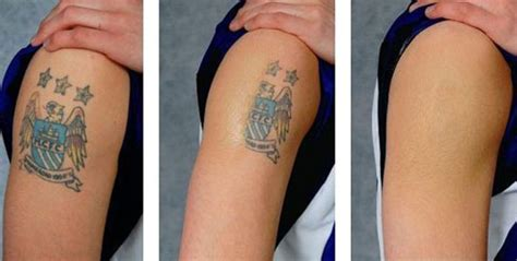 tattoo removal with salt before and after home removal methods of removal